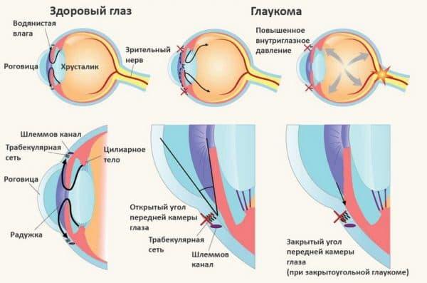 глазная болезнь глакома