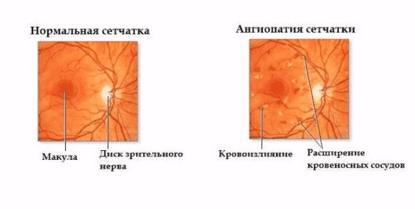 ангиопатия