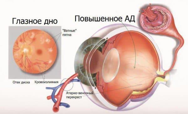 схема ангиопатия глаза