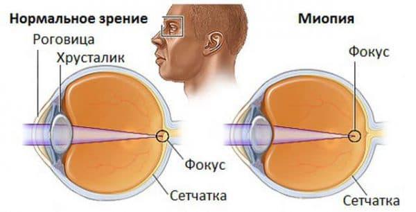 схема миопии