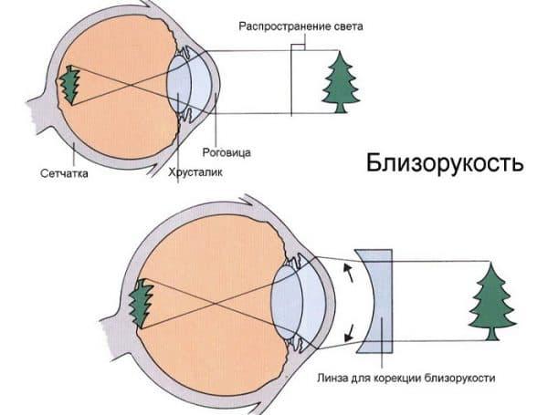 схема близорукости