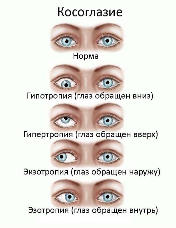 амблиопия глаз
