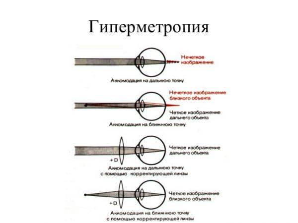 схема гиперметропия