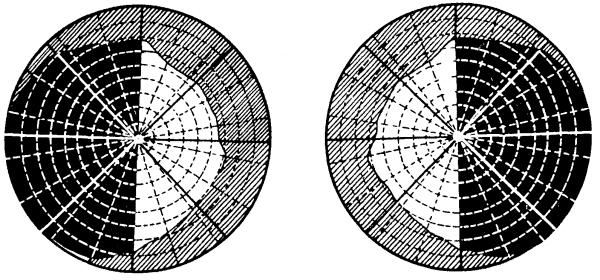 схема битемпоральной гемианопсии