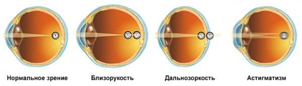 зрение при гиперметропии