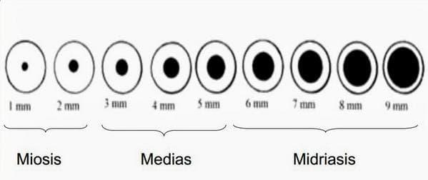 анизокория глаз