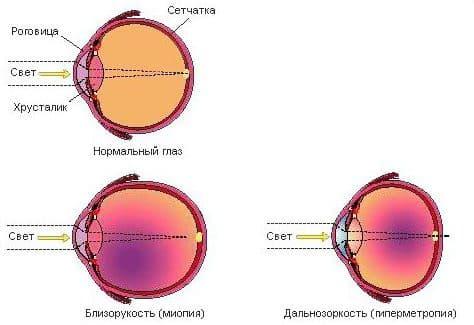 гиперметропия схематический рисунок