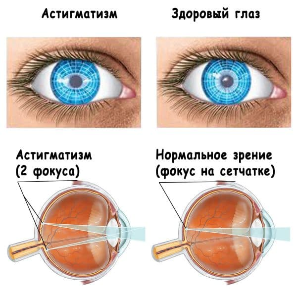 схема астигматизма глаз