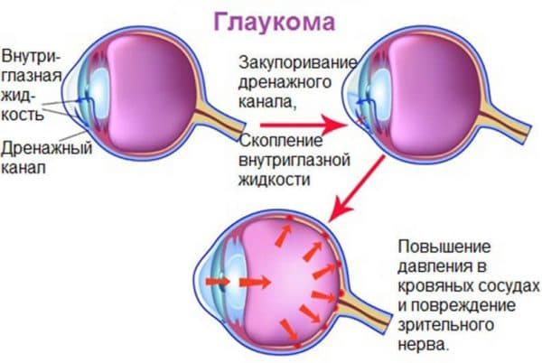 глаукома обоих глаз