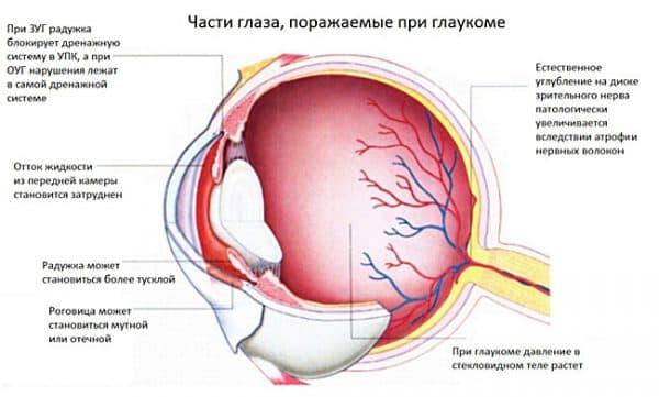 глаукома гдаза