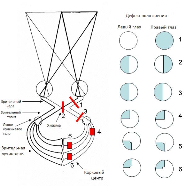 схема дефектов полей зрения