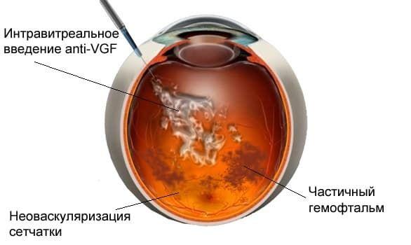 заболевание гемофтальм