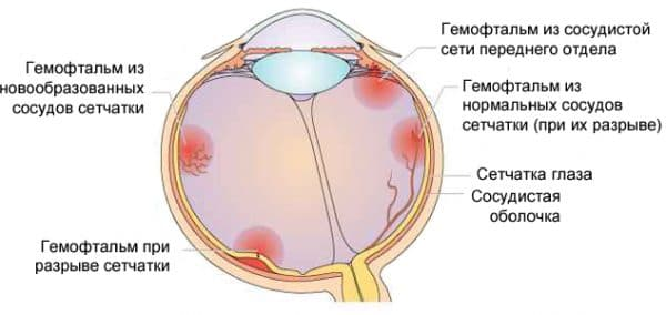 гемофтальм глаз