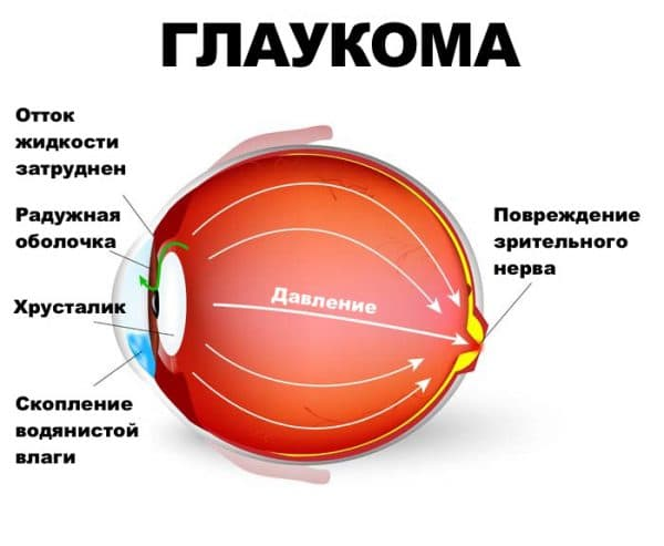 вторичная глаукома глаз