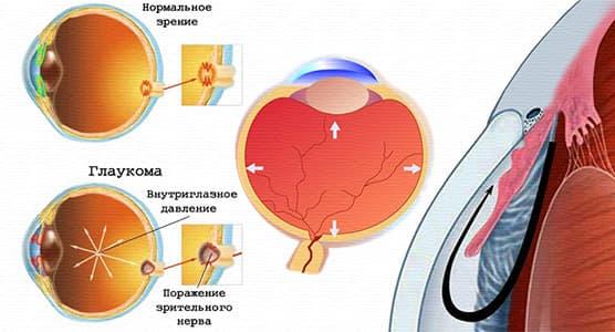 глаукома глазного яблока
