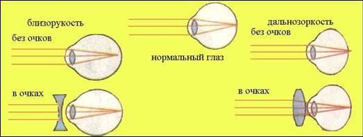 коррекция гиперметропии