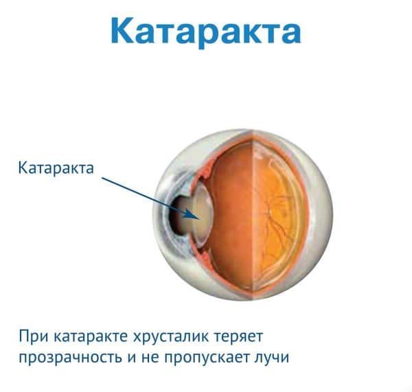схема катаракты