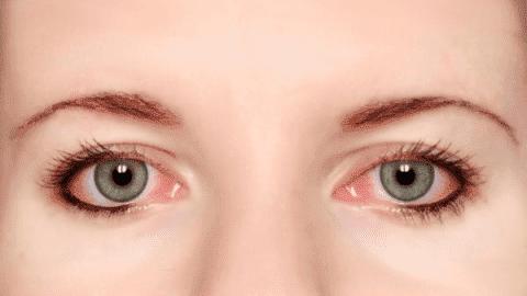 Почему лопнул капилляр в глазу, что делать?