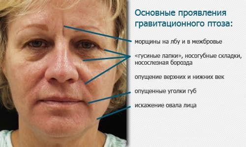 симптомы птоза