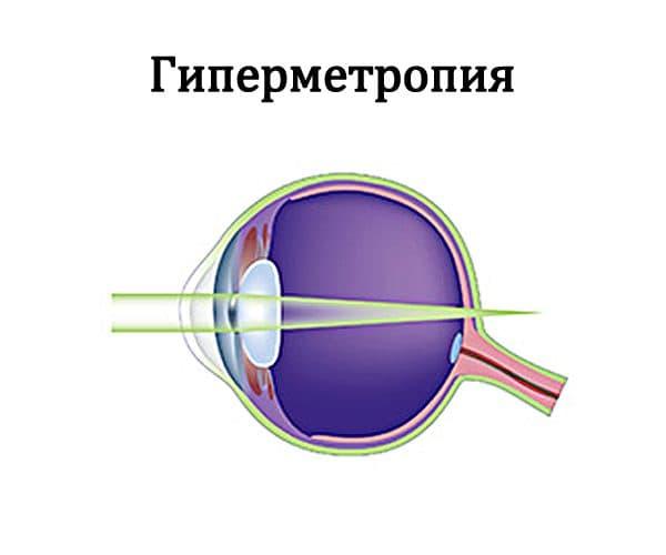 схема гиперметропии глаза