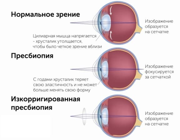 схема пресбиопии