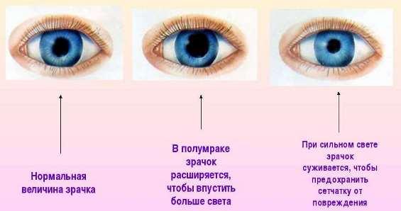 миоз зрачков глаз
