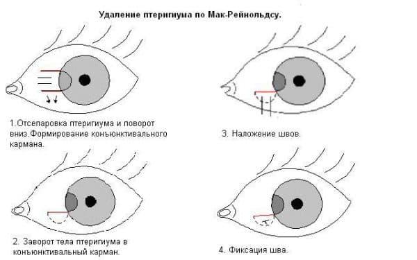 птеригиум глаза схема