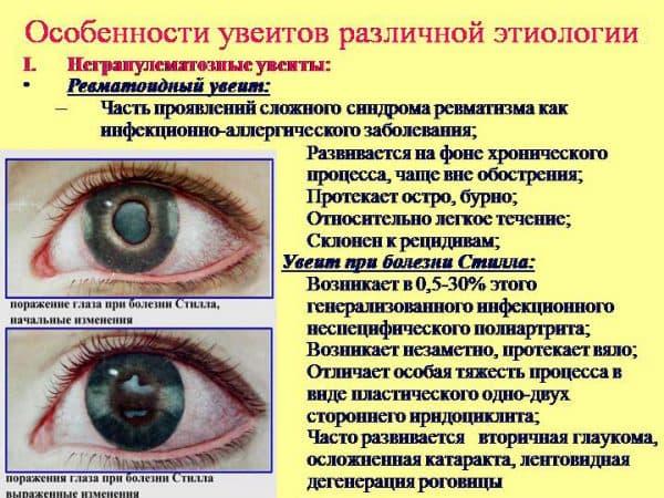 симптомы уевитов