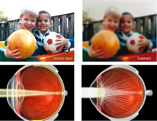 сравнение зрения при норме и катаркте