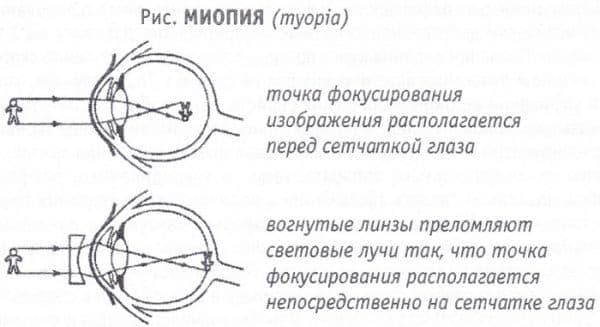 миопия