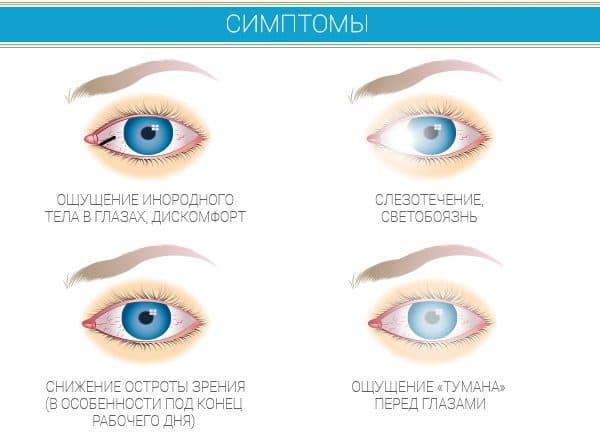 синдром сухого глаза, распространенные симптомы