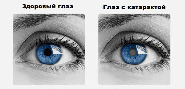 хрусталик с катарактой и без