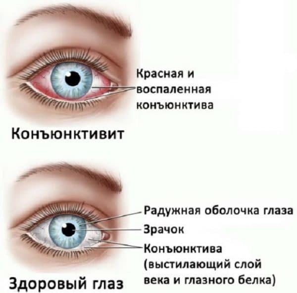 здоровый глаз и с воспаленной конънктитвой