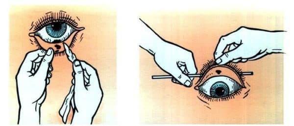 схема оказания первой помощи при попадании инородного тела в глаз