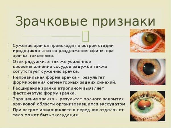 признаки уевитов