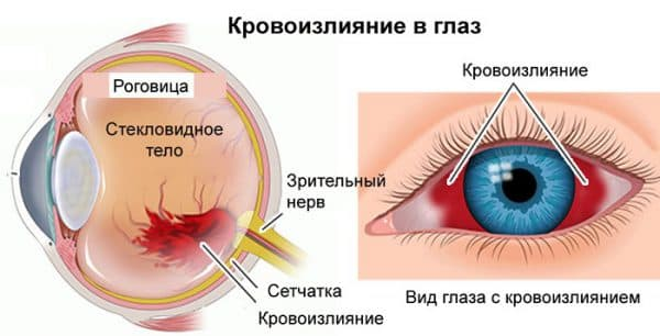 кровоизлияние в стекловидном теле