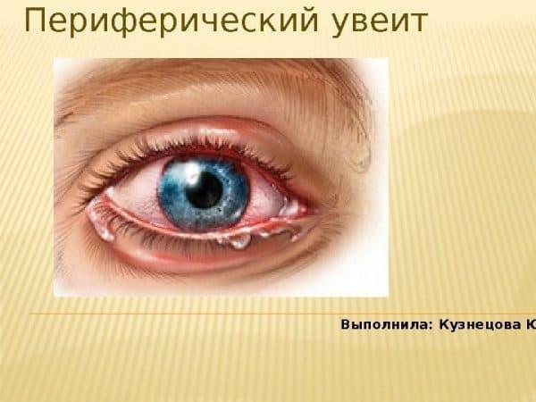 периферический уевит глаз