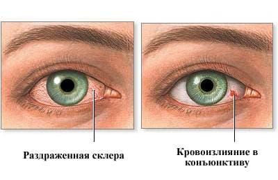 лопаются сосуды в глазах
