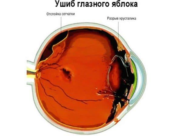 схема ушиба глаза