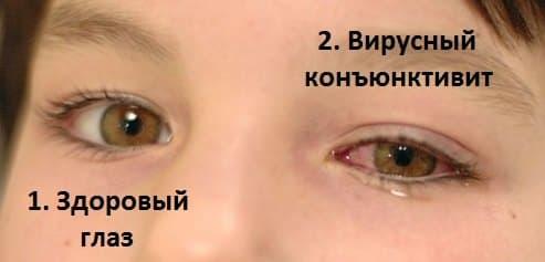 здоровый глаз и глаз с вирусным конъюнктивитом