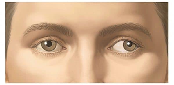 ленивый глаз