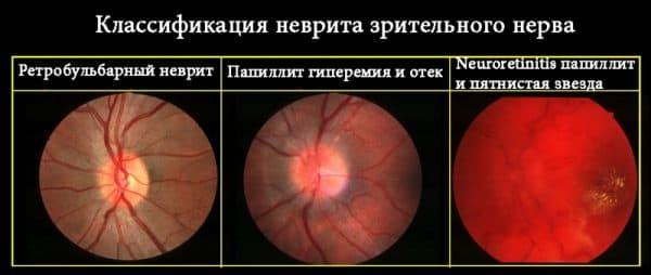 виды невритов зретильного нерва